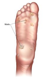 warts3