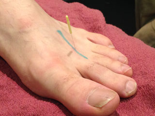 MR Podiatry dry needling feet treatment