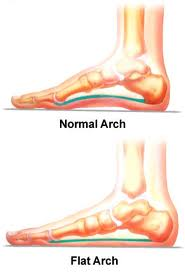 MR Podiatry flat feet arch