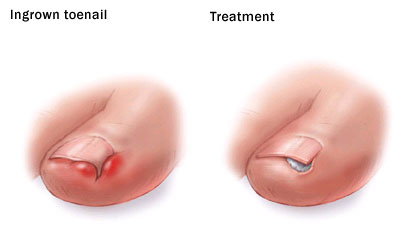 MR Podiatry in-grown toenail