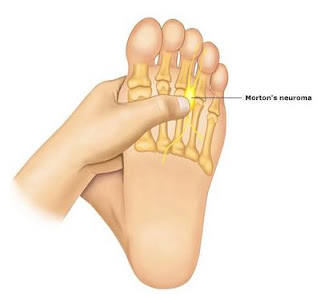 MR Podiatry neuroma